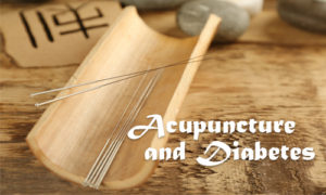 Image of acupuncture needles