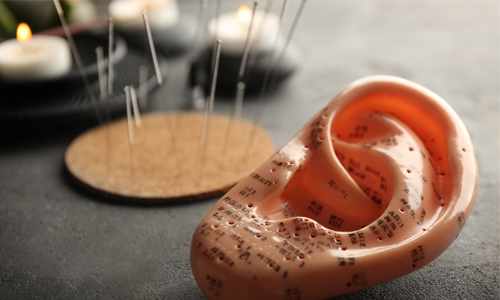 Image of a plastic ear with acupuncture needles