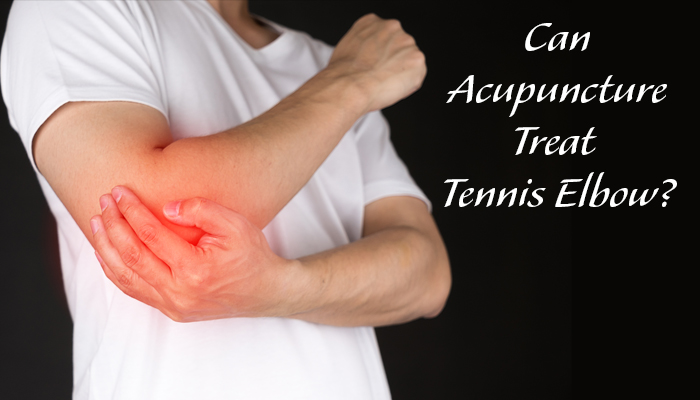 Can Acupuncture Treat Tennis Elbow