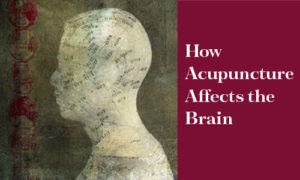 Header image with title How Acupuncture Affects the Brain