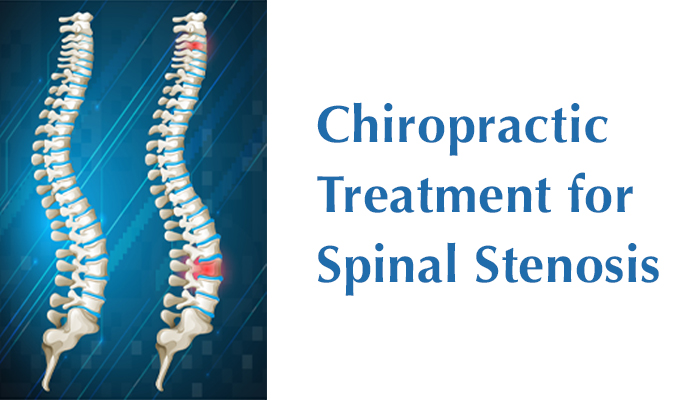 Chiropractic Treatment for Spinal Stenosis