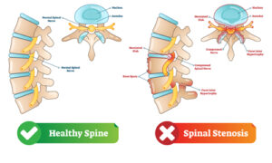 image contrasting a healthy spine with a spine having spinal stenosis